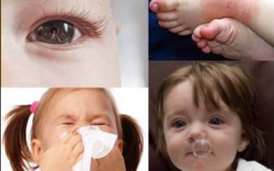 Taller botiquín natural para Bebés y Niños Online